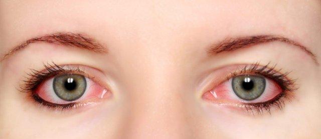 Κόκκινα μάτια και τι σημαίνουν