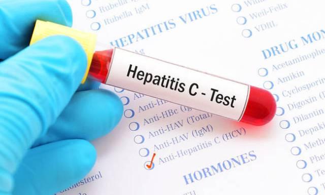 Ποιοι πρέπει να ελεγχθούν για ηπατίτιδα C